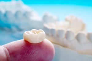 same-day crown sitting on dentist's fingertip