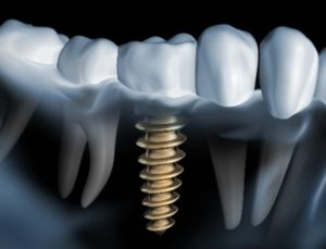 Image used for dental implant terms you should know